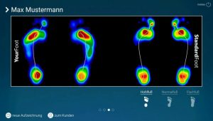 Vergleich von zwei Fußdruckmessungen bei der Laufanalyse